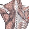 【上背部筋肉の名称と作用】棘腕筋群の全筋肉を解説