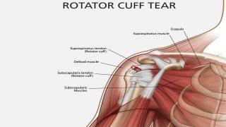 【回旋筋腱板】肩甲骨周辺インナーマッスル・ローテーターカフの鍛え方